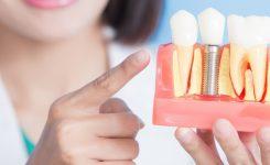 Implantes dentales: todo lo que necesitas saber