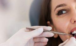 ¿Cómo eliminar manchas en los dientes?