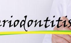 Periodontitis, síntomas y tratamientos